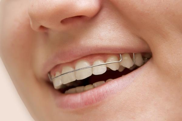 Can I Get My Retainers Tightened? - Reddick Orthodontics
