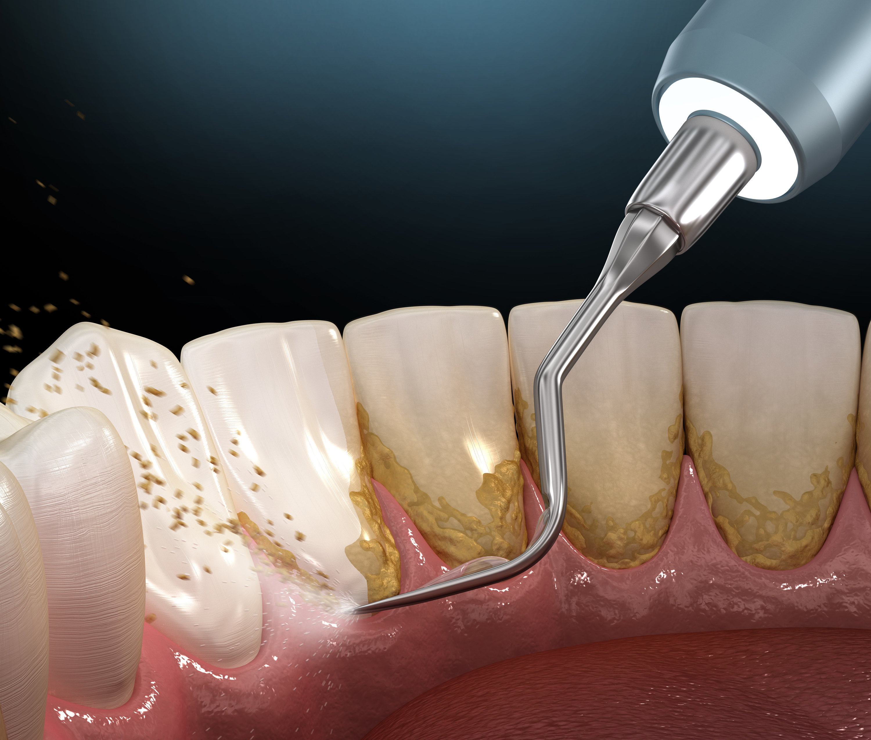 Plaque And Tartar: What Is The Difference?