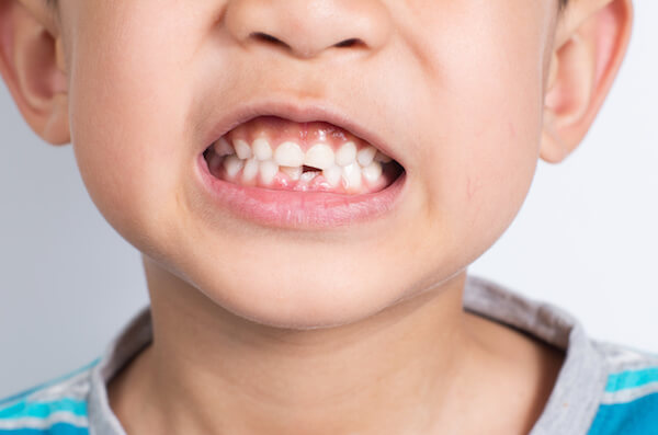 Young Asian boy showing two missing frontal teeth after dental extraction