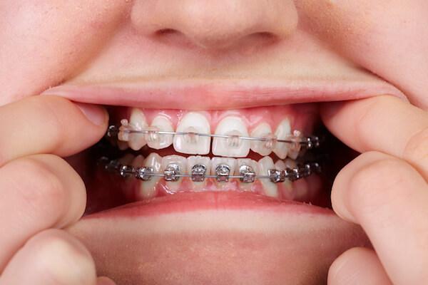 braces myths