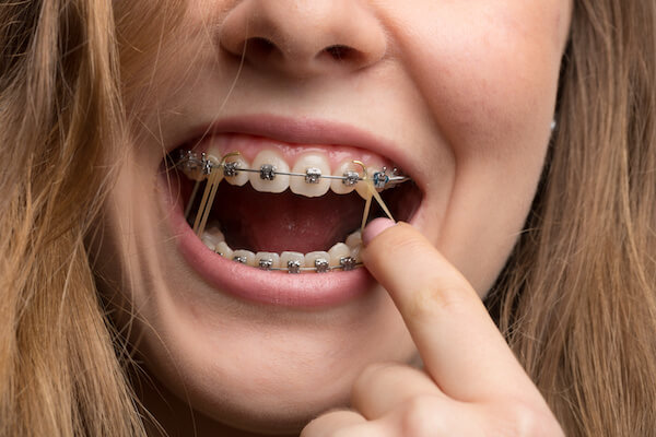 What Your Rubber Bands Are Doing Valderrama Orthodontics