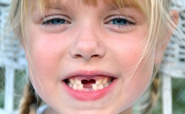 When will my child start losing teeth?