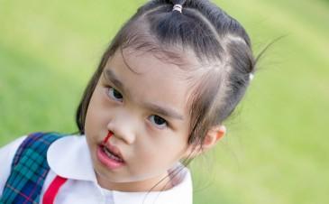 Nosebleeds in toddlers