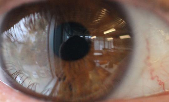 20141113195813-eye.jpg