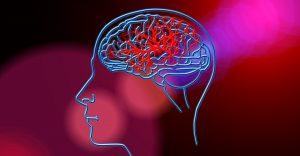 Qué es, cómo identificar y cómo atender un infarto cerebral