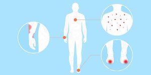 'Dedos de Covid', ampollas y piel roja con manchas: los médicos comparten los nuevos e inusuales síntomas de coronavirus que están viendo en los pacientes
