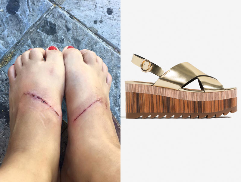 Zara sandalias que queman