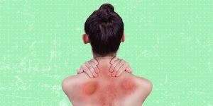 La urticaria crónica espontánea afecta 79% más a las mujeres que a hombres
