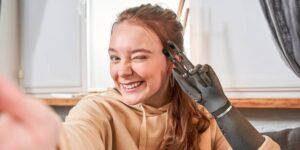 Esta startup creó una mano biónica capaz de mejorar su función entre más tiempo pase con su usuario