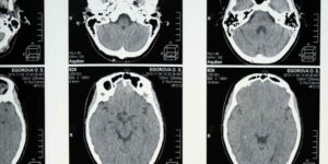 Qué le sucede a tu cerebro cuando pasas por un trauma y desarrollas ansiedad, estrés y depresión