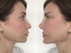 El exceso de Botox hace que las personas parezcan 'aliens'