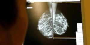 7,880 personas murieron por cáncer de mama durante 2020 en México