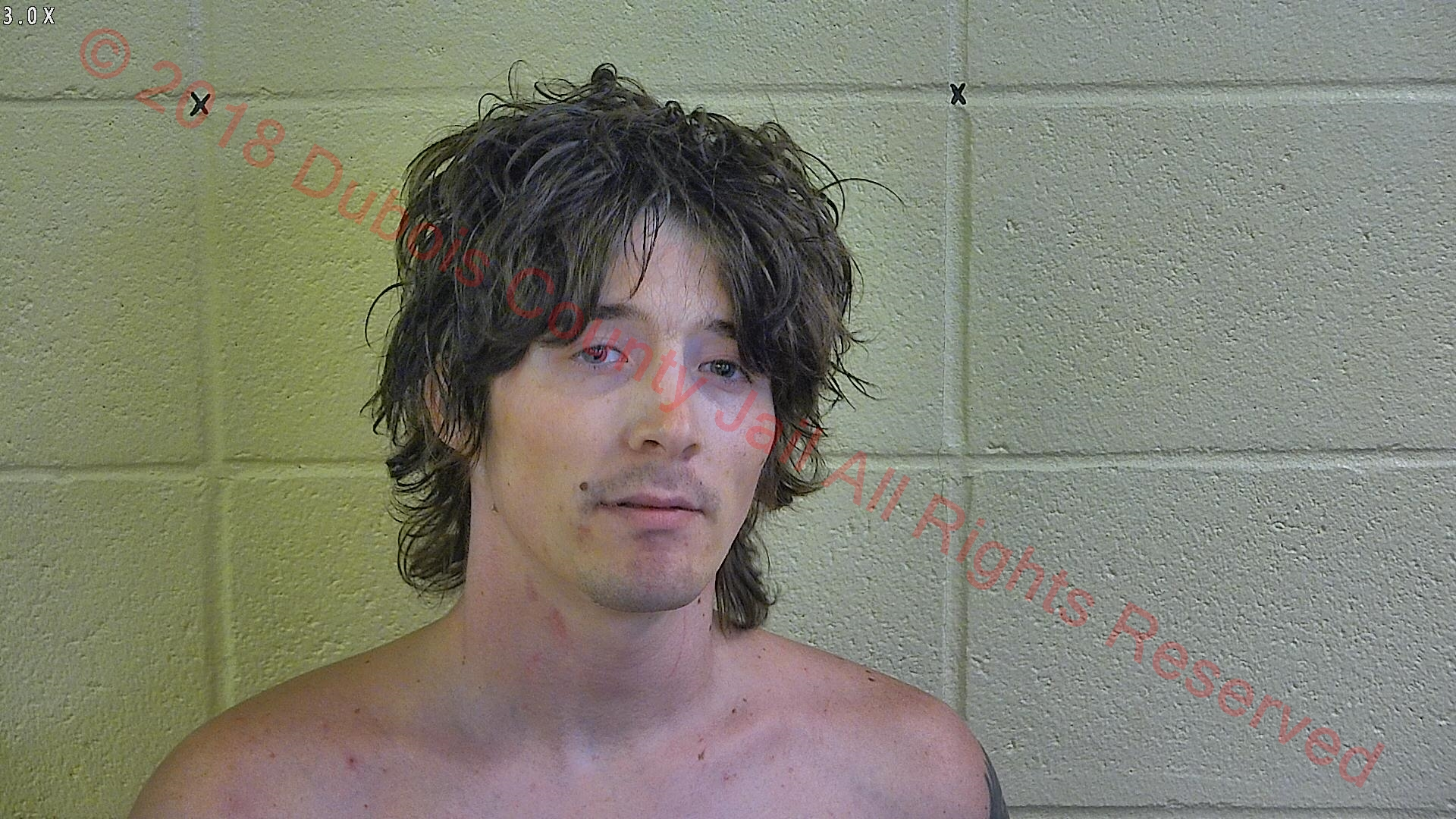 POLICE:  Man Swallows Pot, Goes to Jail