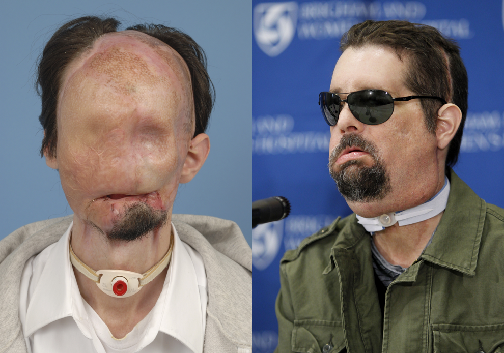 First U.S. FACE TRANSPLANT Turned Out Pretty Well