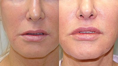 These photos show results of Dr. E. Ronald Finger's lip lift procedure on his patient, a 59-year-old woman, before and two months after the procedure. COURTESY E. RONALD FINGER