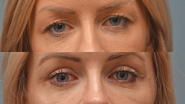 A 26-year-old patient of Dr. Finger three weeks after upper and lower blepharoplasty (eyelid lift). COURTESY FINGER AND ASSOCIATES