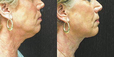 Before and after photos of a patient who underwent direct excision with Z-plasty under local anesthesia. The