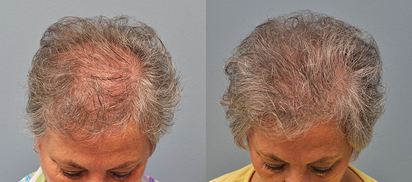Before and after hair transplant photos of a female patient of Dr. Finger.