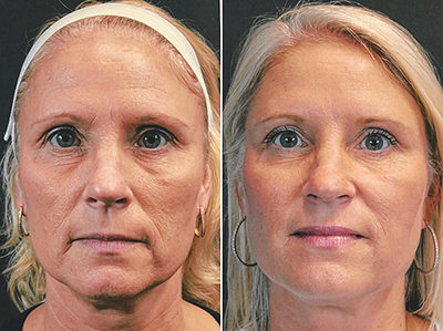 Modified facelift yields similar positive results in less time
