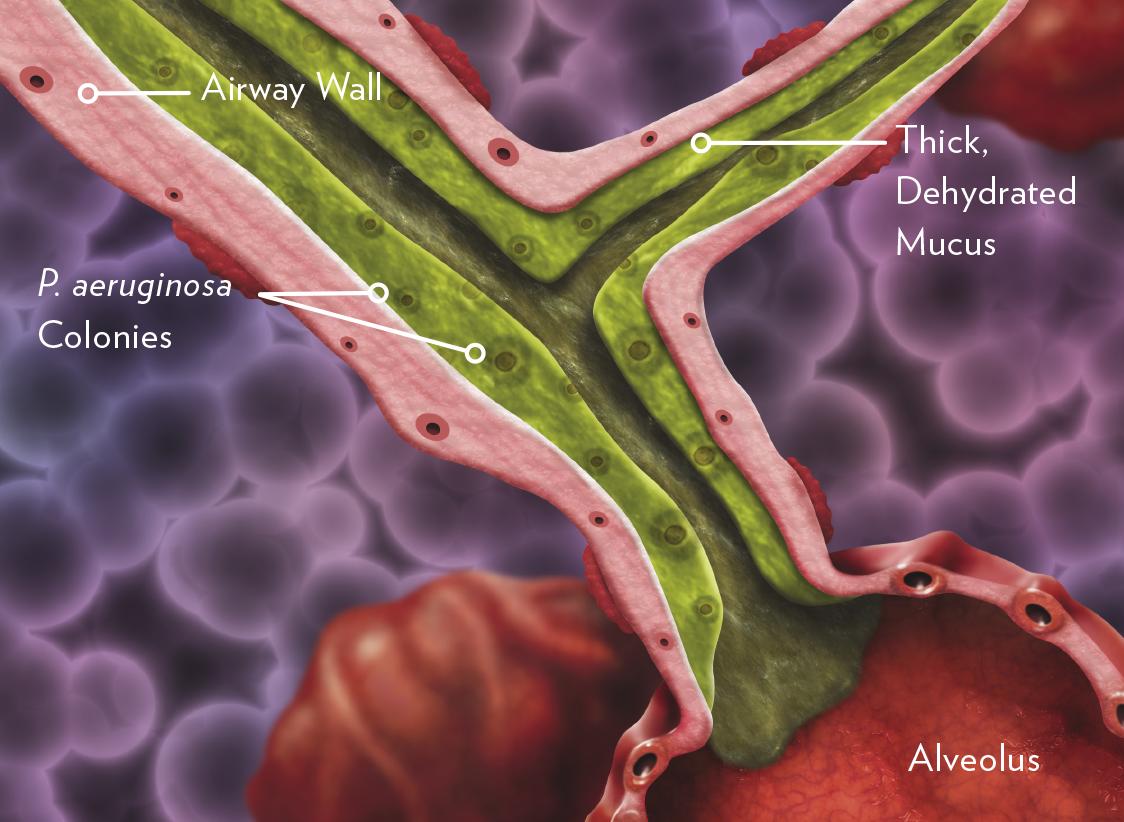 Pseudomonas aeruginosa infected airway image