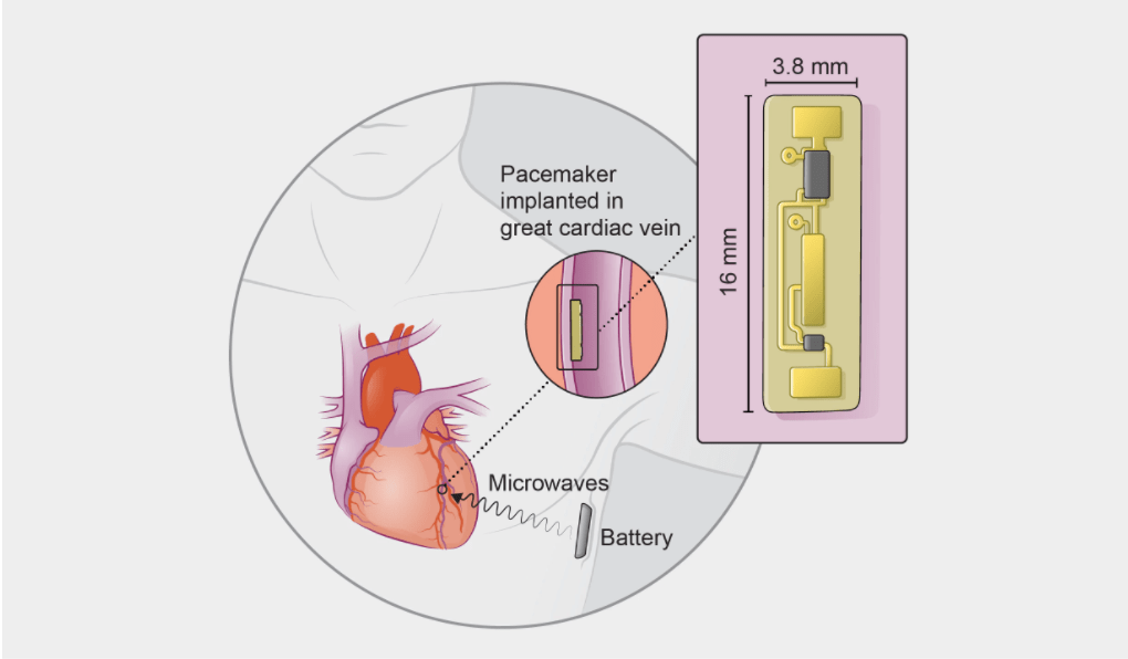 Your Next Pacemaker Might Be Implanted In     Your Armpit