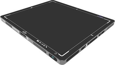 NexRay (MSPT) - HDX Mini System