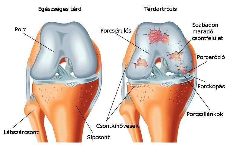 ízületi betegség fajtája miután megütötte a könyökét, a kar fáj