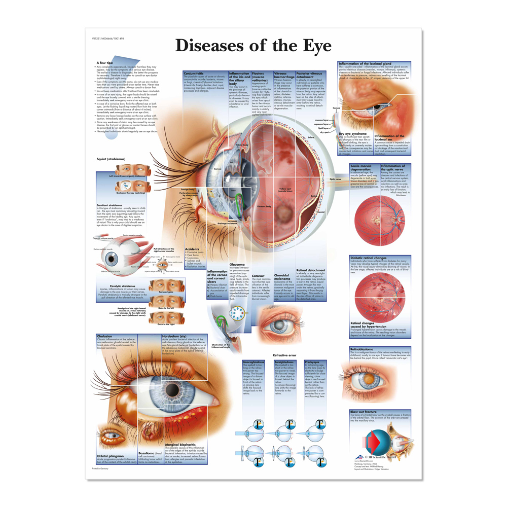Diseases of the Eye Poster