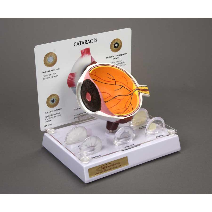 Cataract Eye Model