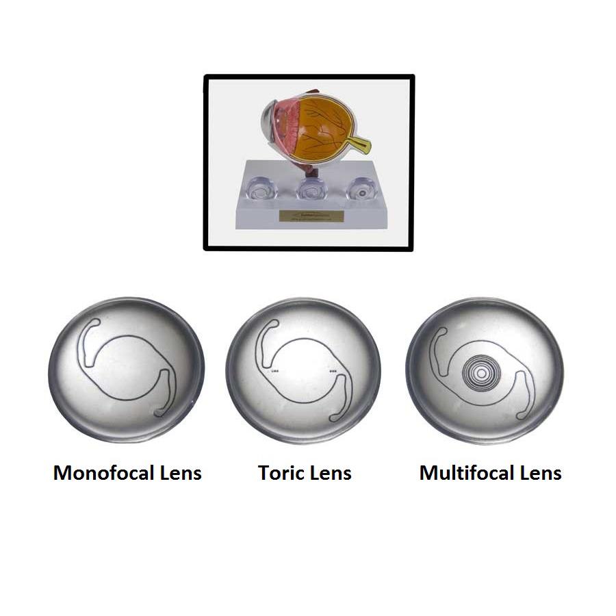 Premium IOL Options Lens Set
