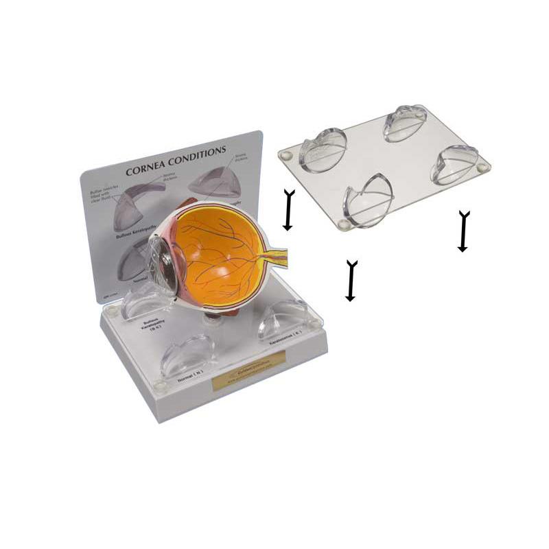 Lens Stabilizer for Cornea Model