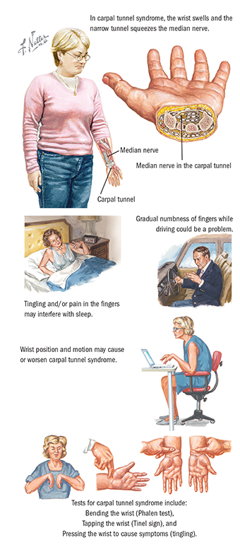 Carpal Tunnel Surgery Spectrum Health