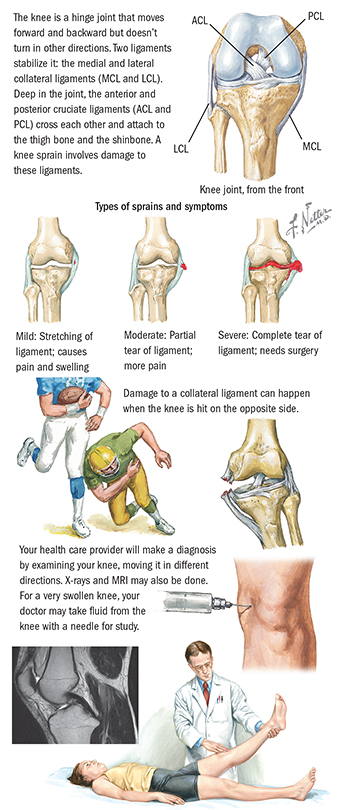 About Anterior Cruciate Ligament Tear Spectrum Health