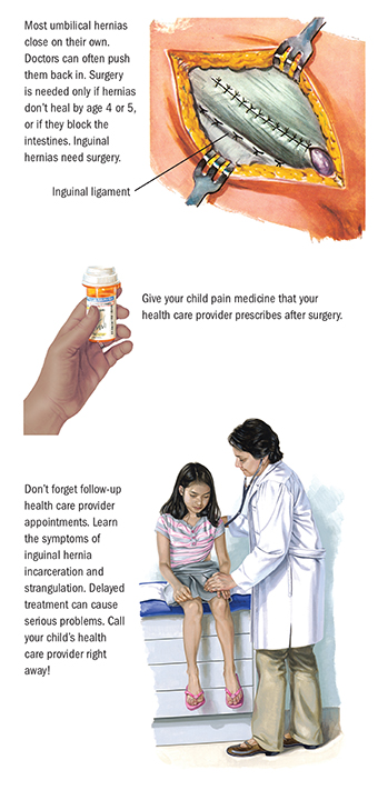 Surgery for Hernias in Children | Spectrum Health