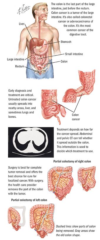 About Colon Cancer Colorectal Cancer Spectrum Health