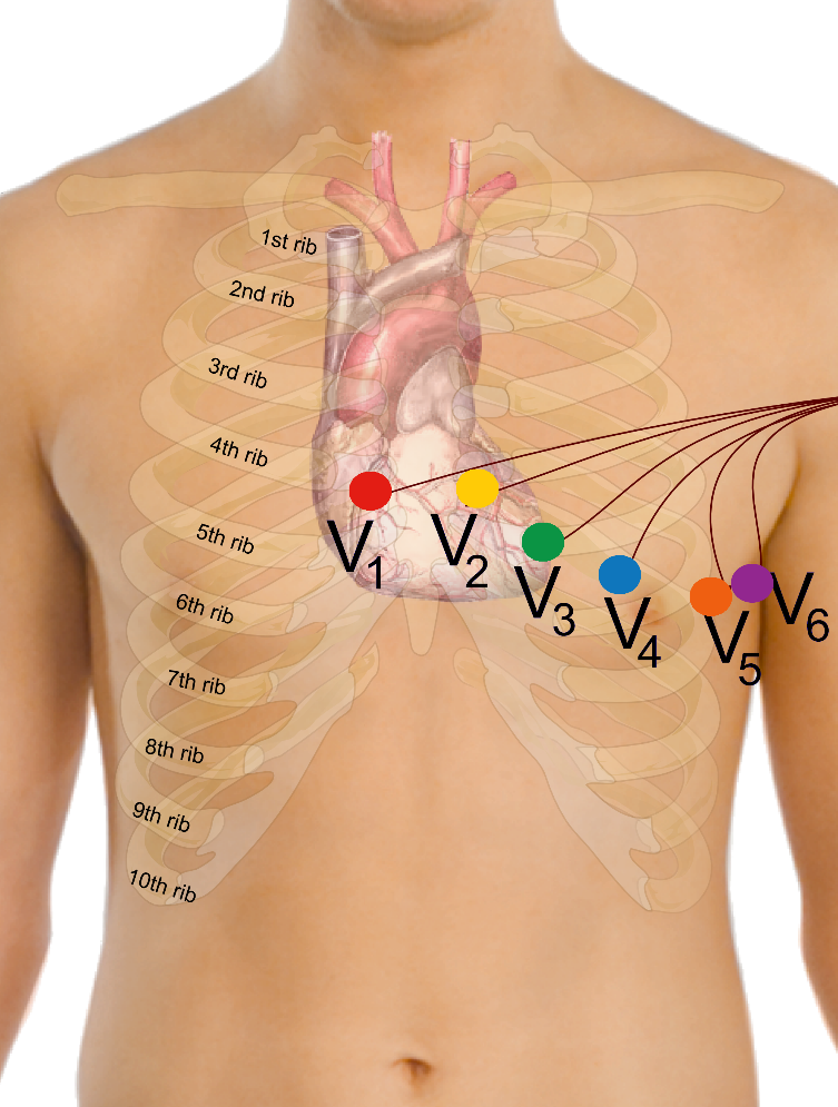 Ekg Electrode Placement Instructions   Curavi Health Support