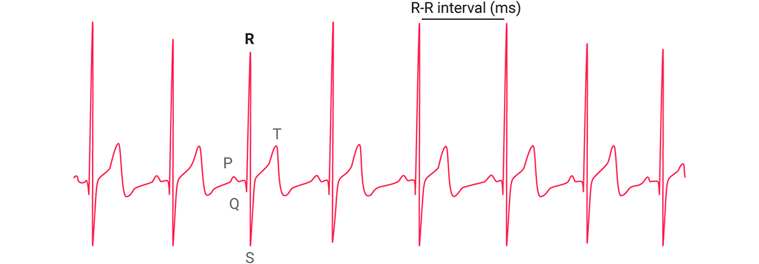 Интервалы R-R