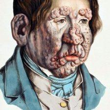 Día Mundial de la Lepra