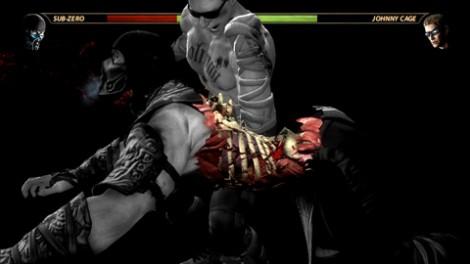 Mortal Kombat X-Ray
