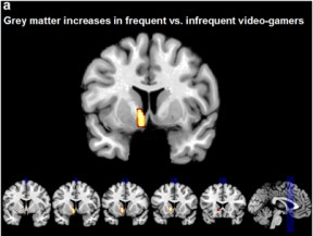 Grey Matter Brain Scan