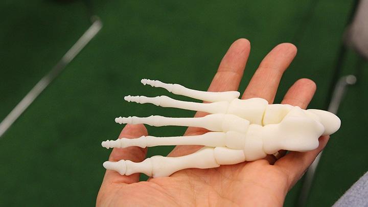 3D printing of bones