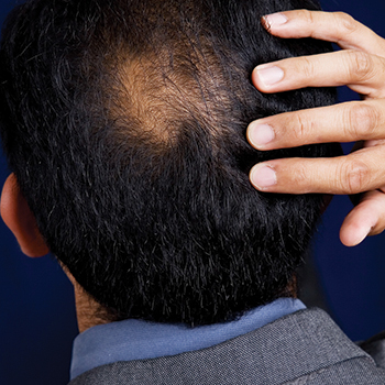 2. Oil out hair loss.