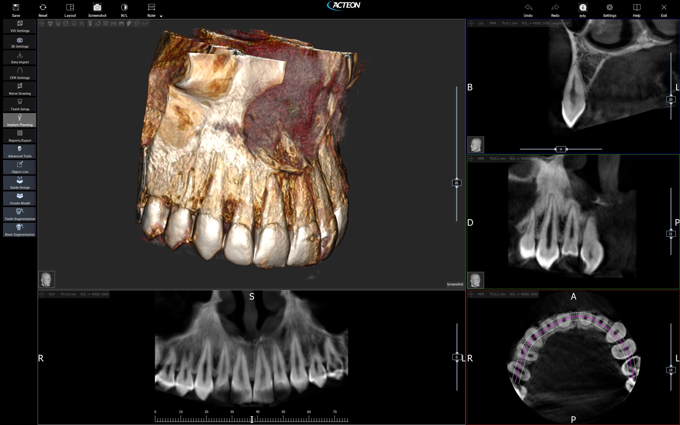 3D CBCT Imaging