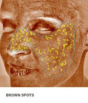 Brown Spots Analysis New York
