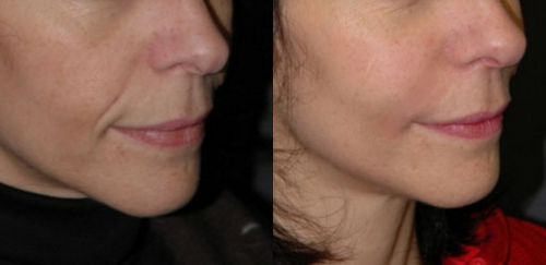 facial filler before and after