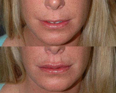 french lips - before and after