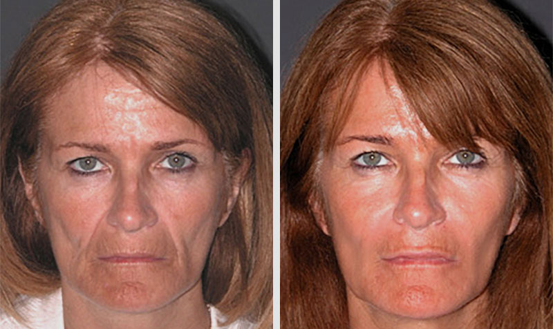 liquid facelift nyc