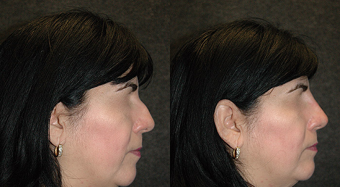long island non surgical rhinoplasty