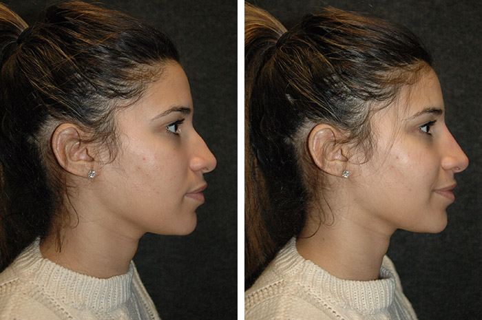non surgical rhinoplsaty before and after