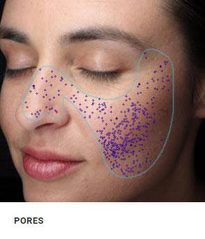 Enlarded Pores Analysis New York